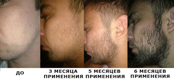 Результат применения миноксидила