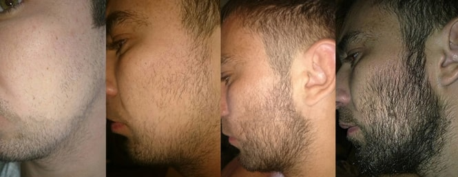 Что такое миноксидил для бороды