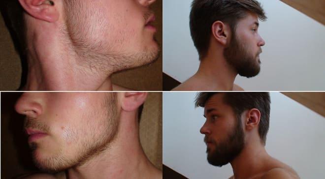 Результат применения миноксидила для бороды